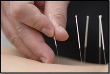 Acupuncture2